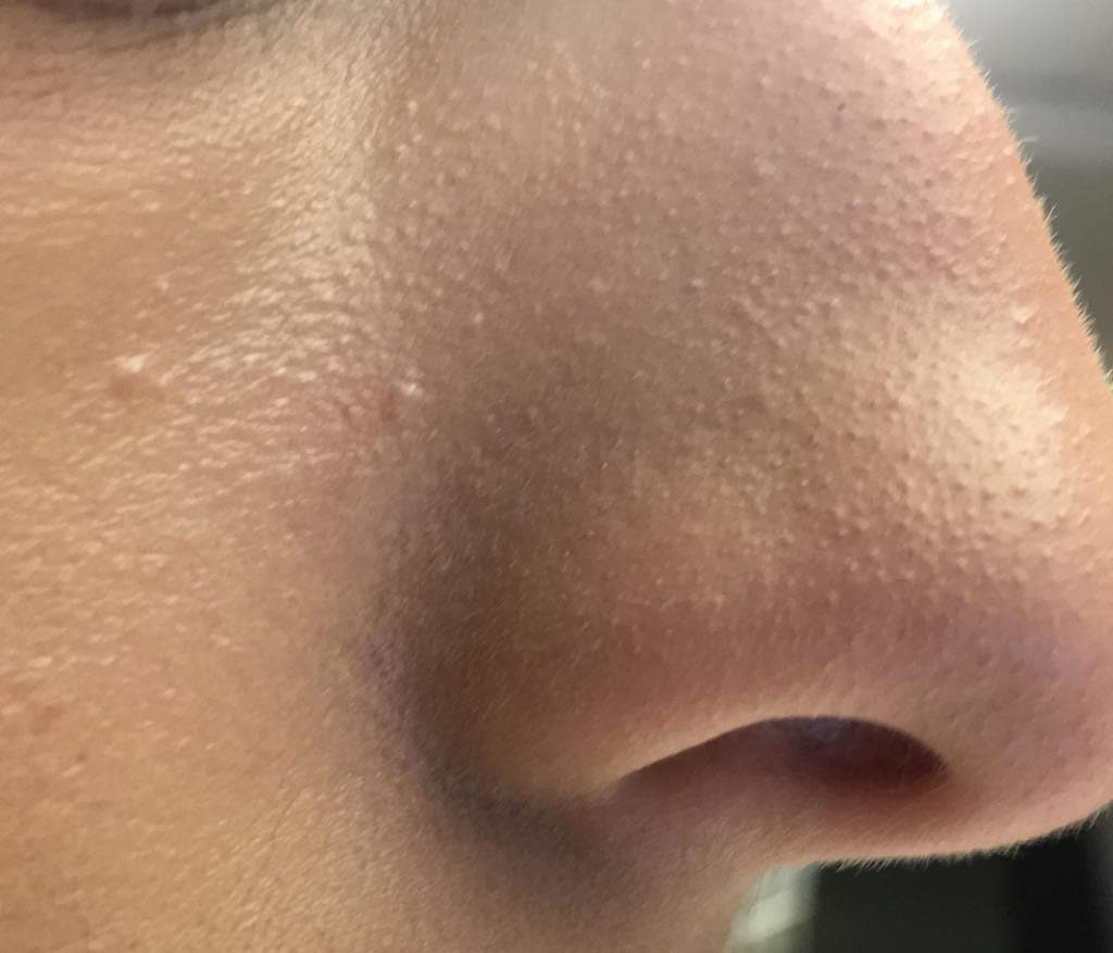 WHAT IS SEBACEOUS FILAMENT? - Carly Skincare